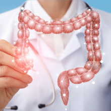 DNA test to preventively know the risk of colorectal carcinoma