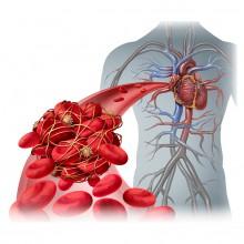 Perfil genómico riesgo de trombosis